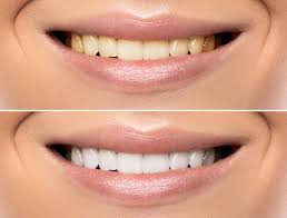 Teeth Whitening Beaufort Sc Cosmetic Dentistry Dentist Ladys
