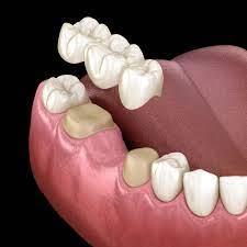 dental bridge Ladys Island SC