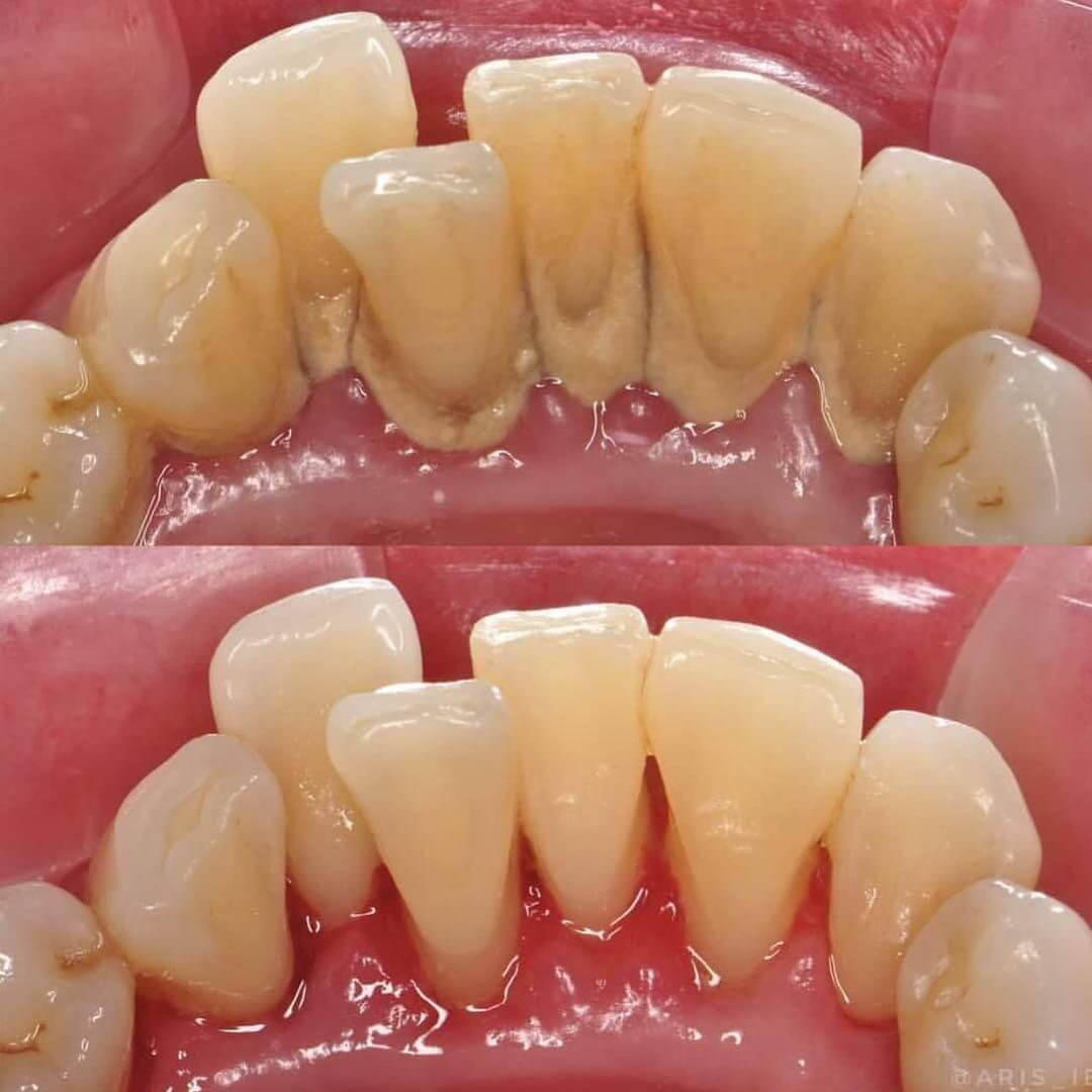 Full Mouth Debridement Before and After