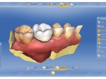 One Day Tooth Crown Technology