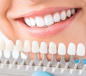 teeth whitening Beaufort SC