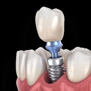 Dental implants in Beaufort, SC