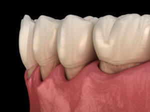 Gum Recession treatment in Beaufort SC