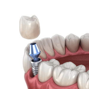 Parts of a beaufort SC Dental Implant