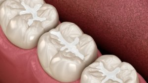 Dental Sealants Beaufort SC