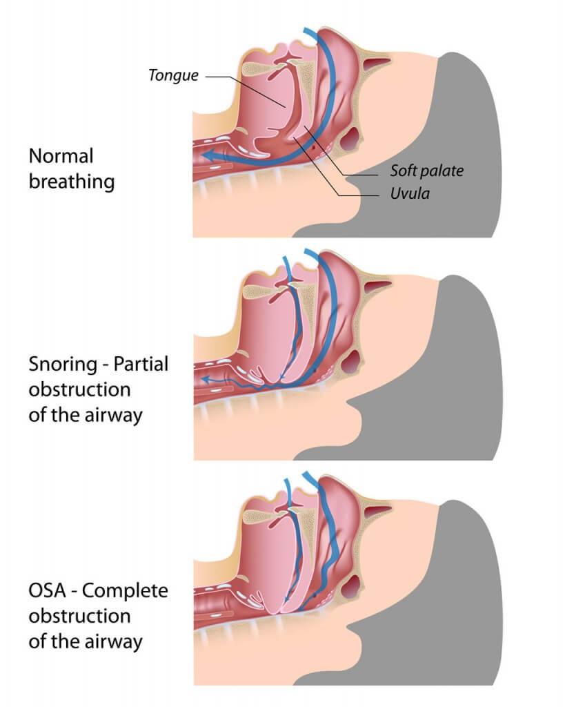 Sleep Apnea illustration example