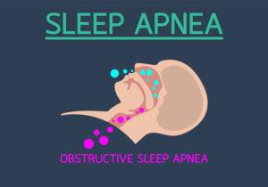 Sleep Apnea Beaufort SC